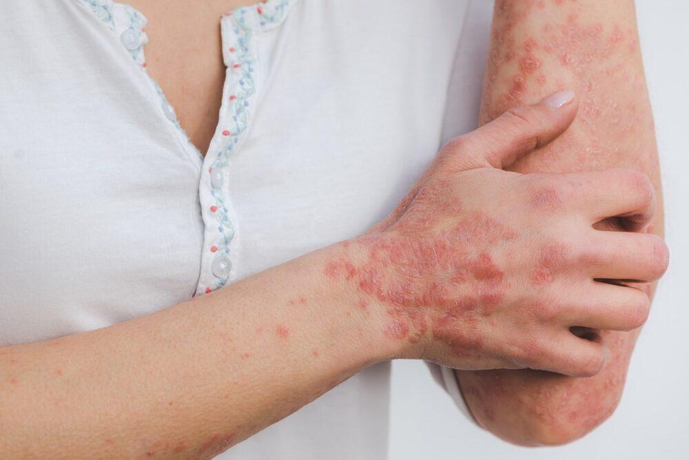 Leczenie tlenem łuszczycy skóry